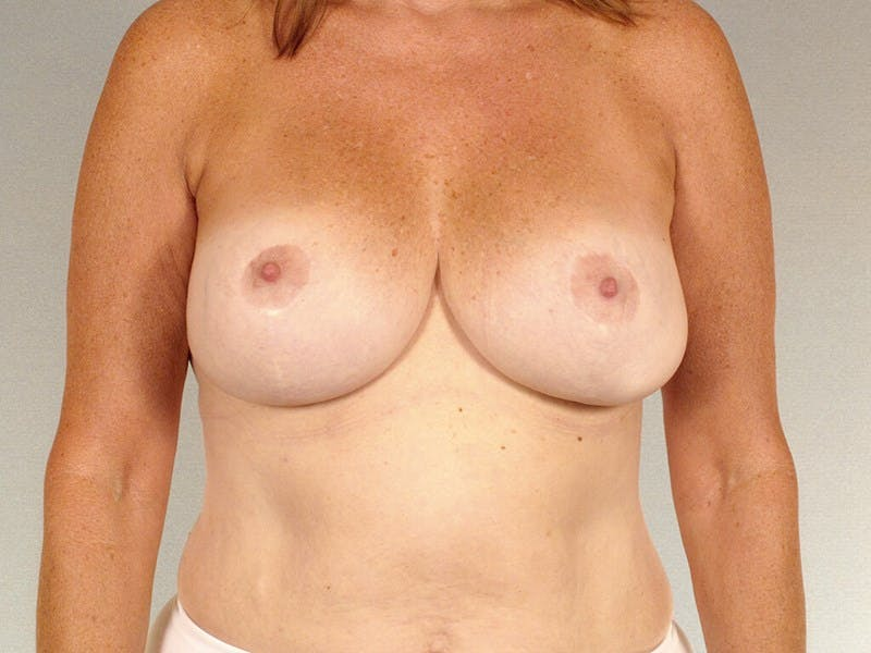 Breast Lift Gallery - Patient 20912930 - Image 2
