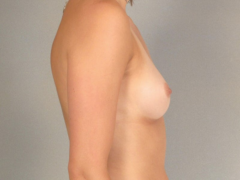 Breast Augmentation Gallery - Patient 20912929 - Image 5