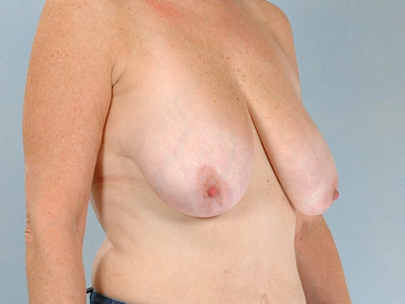 Breast Lift Gallery - Patient 20912930 - Image 3