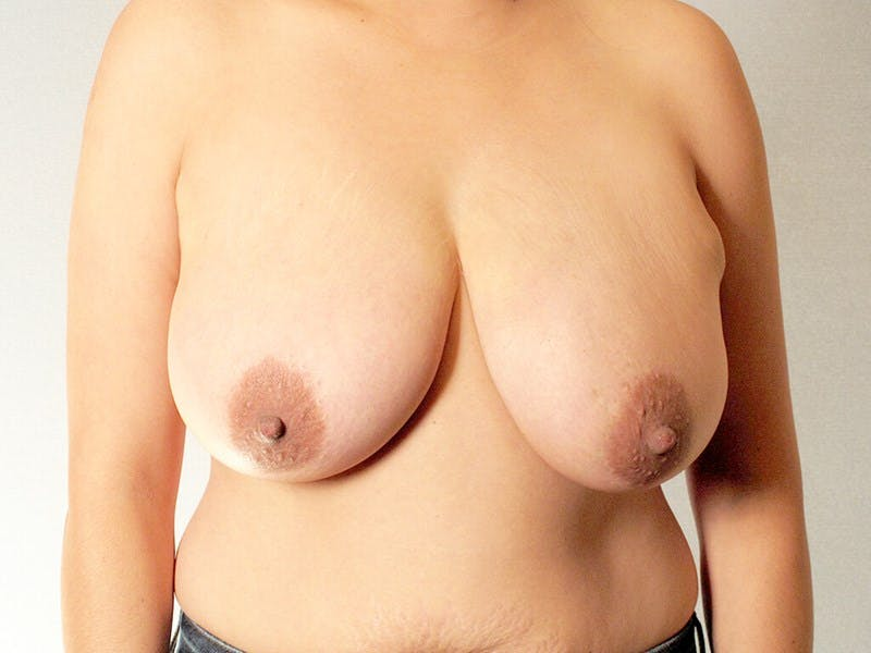 Breast Reduction Gallery - Patient 20912931 - Image 1