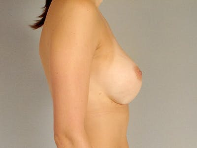 Breast Augmentation Gallery - Patient 20912929 - Image 6