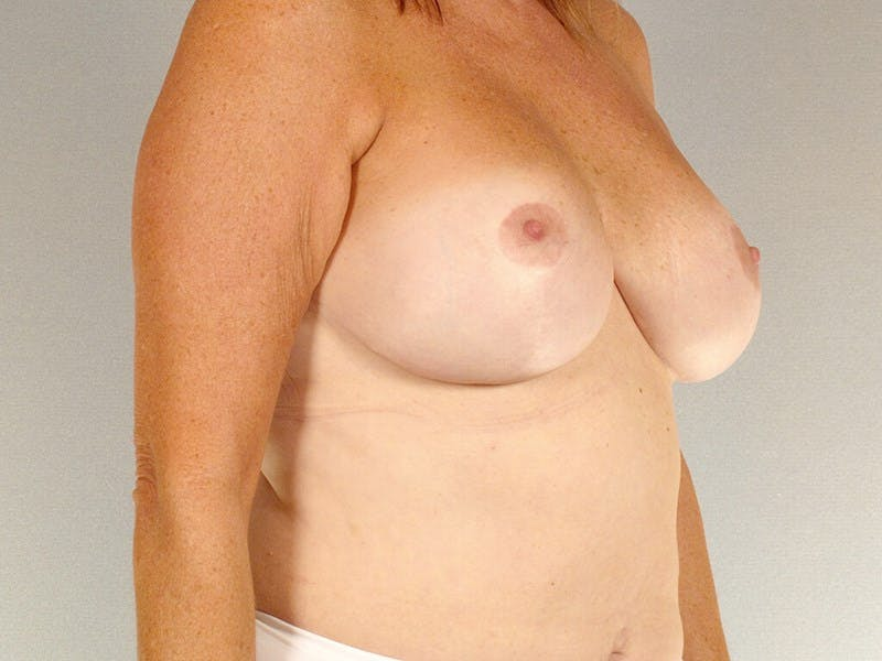Breast Lift Gallery - Patient 20912930 - Image 4
