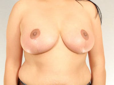 Breast Reduction Gallery - Patient 20912931 - Image 2