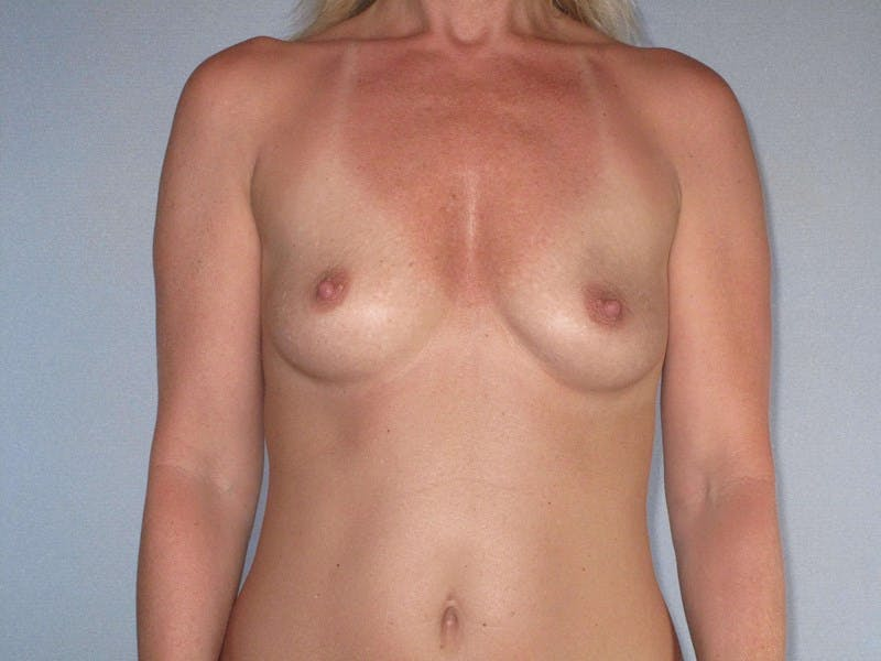 Breast Augmentation Gallery - Patient 20912932 - Image 1