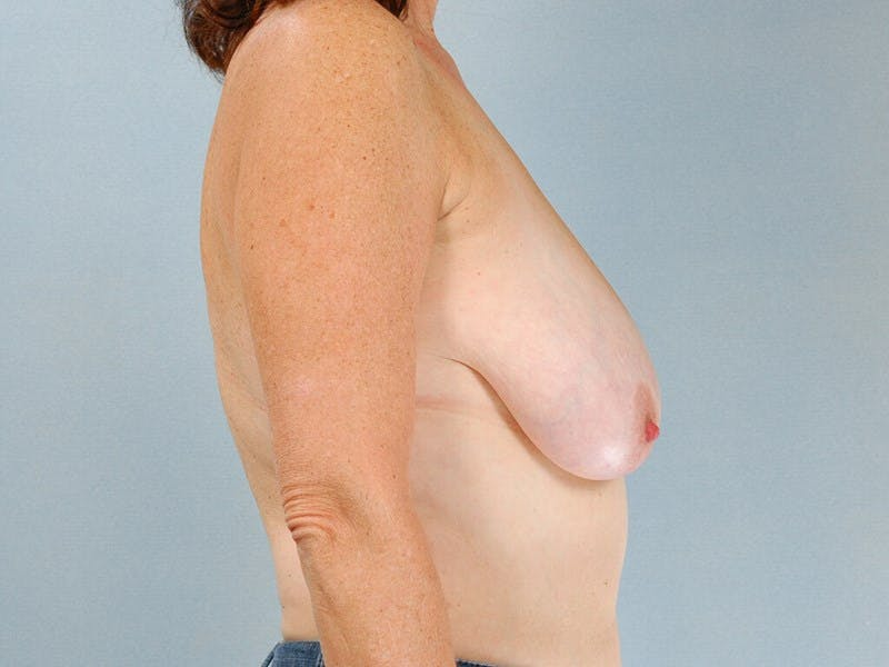 Breast Lift Gallery - Patient 20912930 - Image 5
