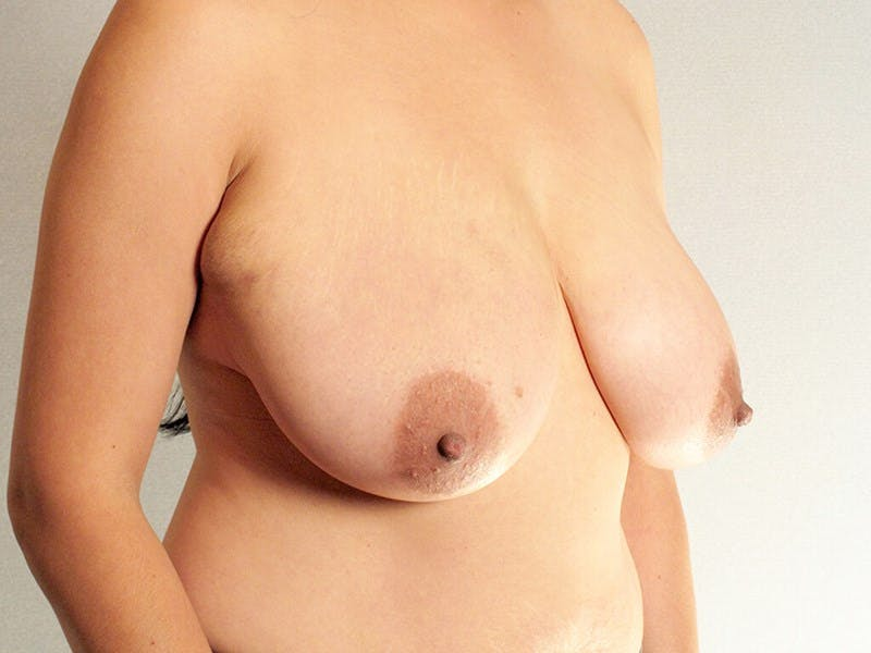 Breast Reduction Gallery - Patient 20912931 - Image 3