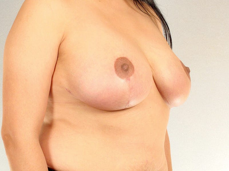 Breast Reduction Gallery - Patient 20912931 - Image 4