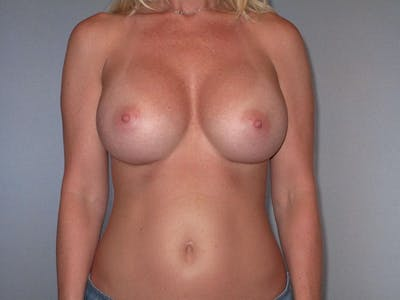 Breast Augmentation Gallery - Patient 20912932 - Image 2