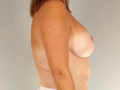 Breast Lift Gallery - Patient 20912930 - Image 6
