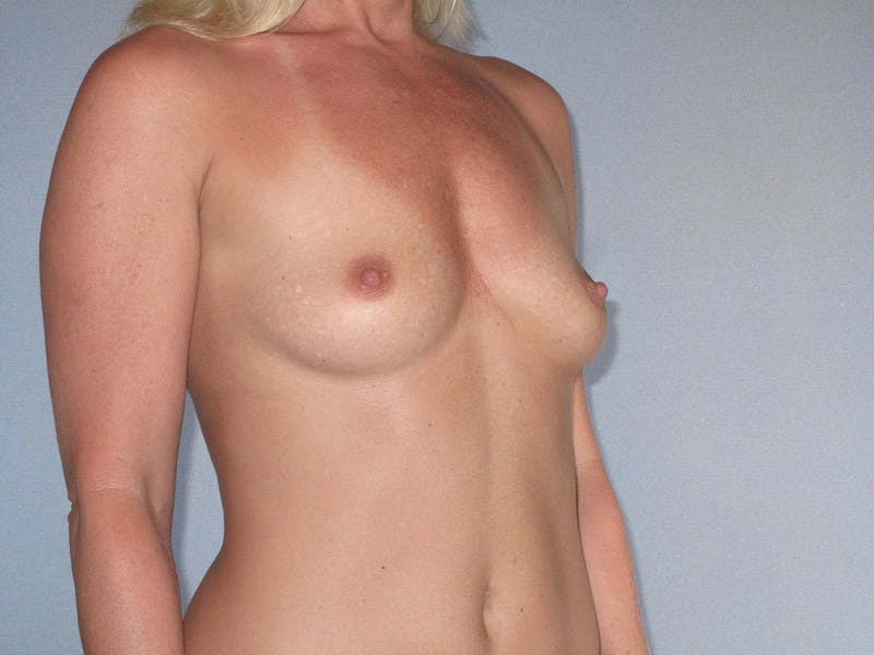 Breast Augmentation Gallery - Patient 20912932 - Image 3