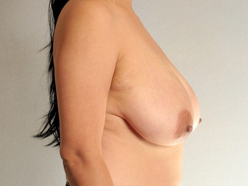 Breast Reduction Gallery - Patient 20912931 - Image 5