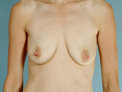 Breast Lift Gallery - Patient 20912933 - Image 1