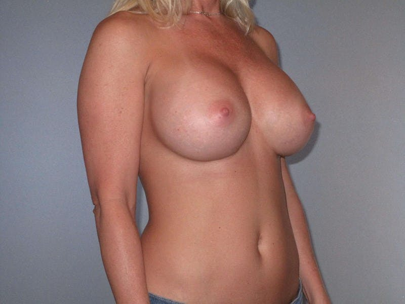 Breast Augmentation Gallery - Patient 20912932 - Image 4