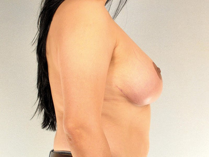 Breast Reduction Gallery - Patient 20912931 - Image 6