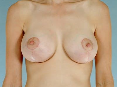 Breast Lift Gallery - Patient 20912933 - Image 2