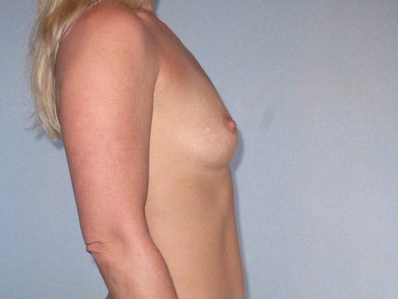 Breast Augmentation Gallery - Patient 20912932 - Image 5