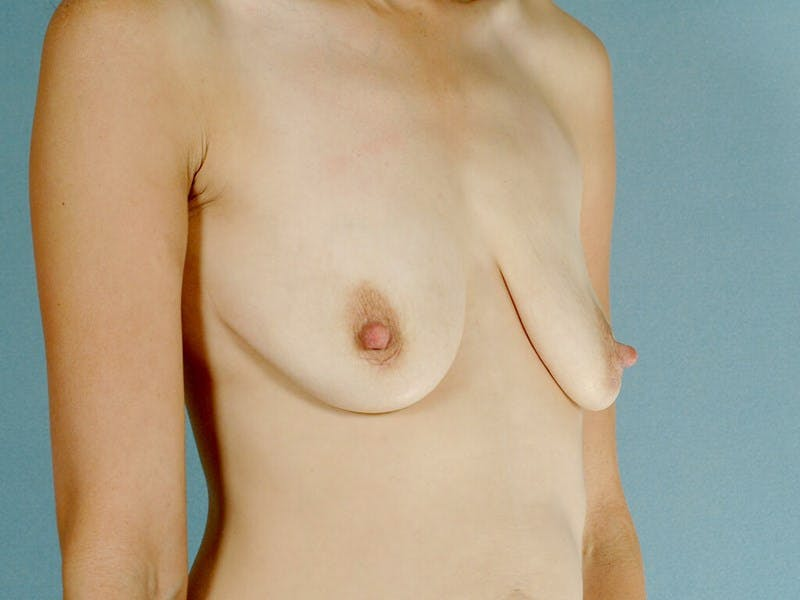 Breast Lift Gallery - Patient 20912933 - Image 3