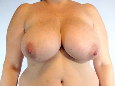 Breast Reduction Gallery - Patient 20912936 - Image 1