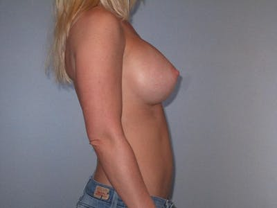 Breast Augmentation Gallery - Patient 20912932 - Image 6