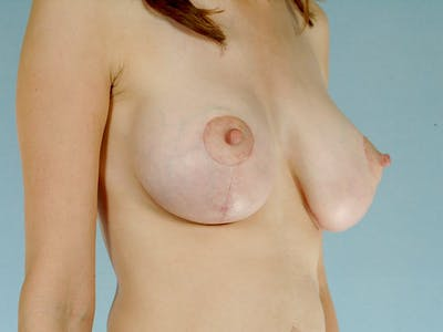 Breast Lift Gallery - Patient 20912933 - Image 4