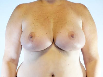 Breast Reduction Gallery - Patient 20912936 - Image 2