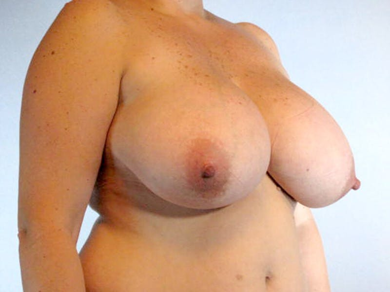 Breast Reduction Gallery - Patient 20912936 - Image 3