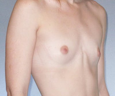 Breast Augmentation Gallery - Patient 20912934 - Image 1