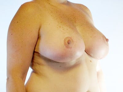 Breast Reduction Gallery - Patient 20912936 - Image 4
