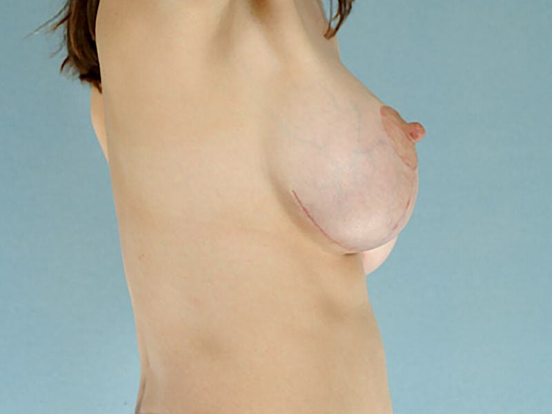 Breast Lift Gallery - Patient 20912933 - Image 6
