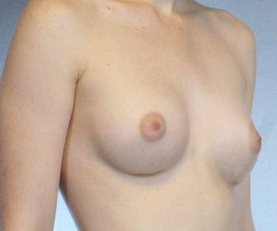 Breast Augmentation Gallery - Patient 20912934 - Image 2