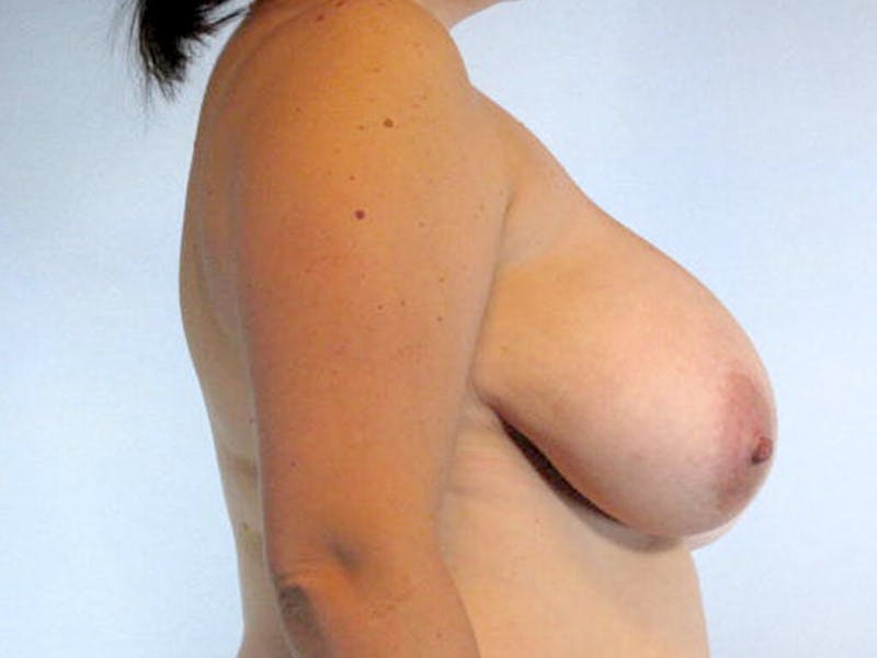 Breast Reduction Gallery - Patient 20912936 - Image 5