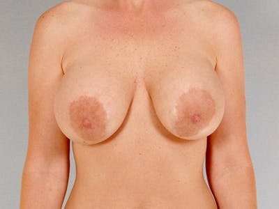 Breast Lift Gallery - Patient 20912938 - Image 1