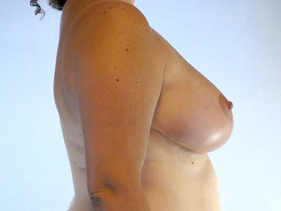 Breast Reduction Gallery - Patient 20912936 - Image 6