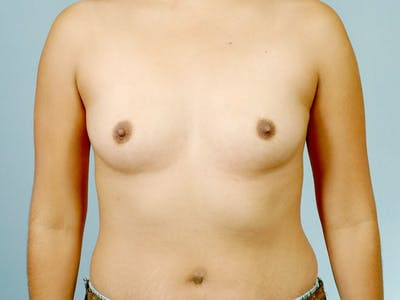 Breast Augmentation Gallery - Patient 20912939 - Image 1