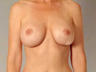 Breast Lift Gallery - Patient 20912938 - Image 2