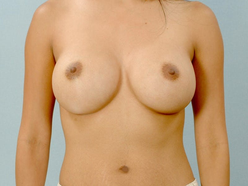 Breast Augmentation Gallery - Patient 20912939 - Image 2