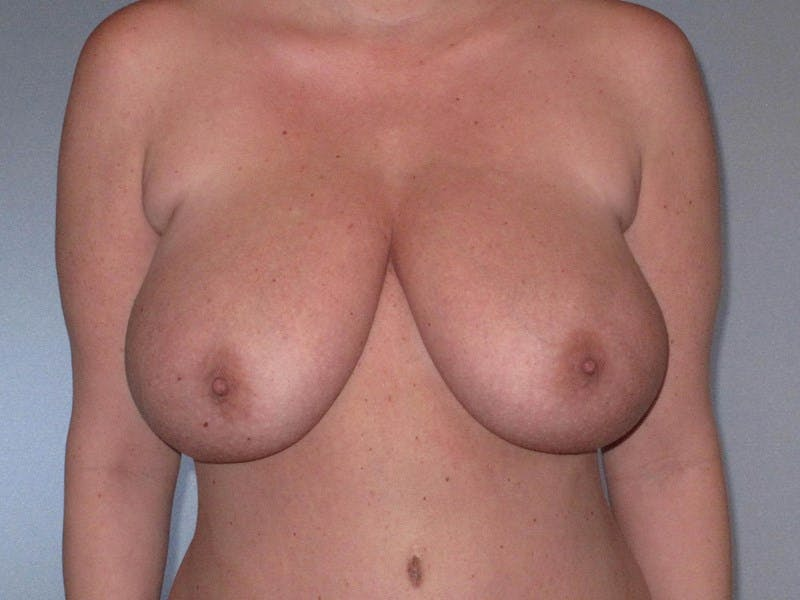Breast Reduction Gallery - Patient 20912940 - Image 1