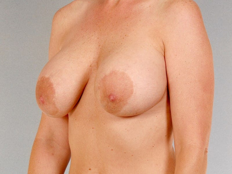 Breast Lift Gallery - Patient 20912938 - Image 3