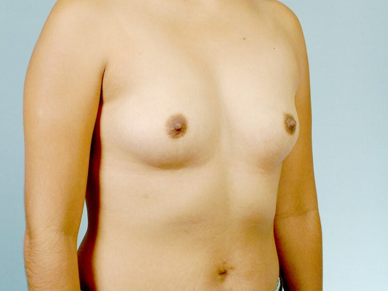 Breast Augmentation Gallery - Patient 20912939 - Image 3