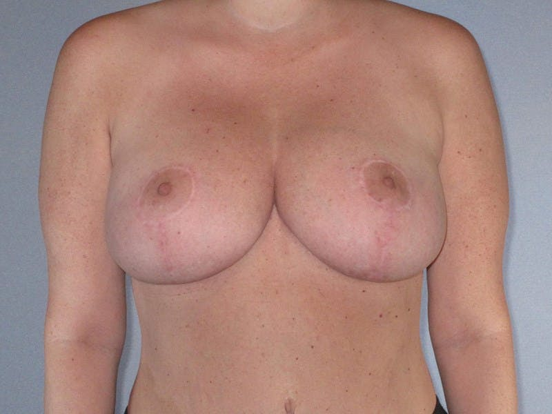 Breast Reduction Gallery - Patient 20912940 - Image 2