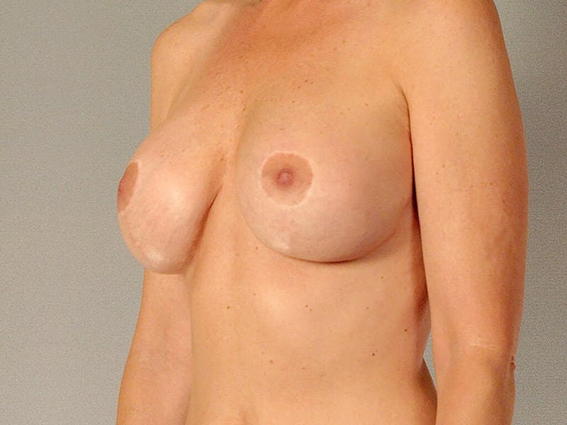 Breast Lift Gallery - Patient 20912938 - Image 4