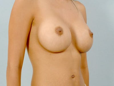 Breast Augmentation Gallery - Patient 20912939 - Image 4