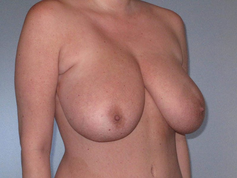 Breast Reduction Gallery - Patient 20912940 - Image 3