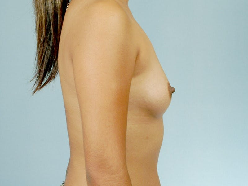 Breast Augmentation Gallery - Patient 20912939 - Image 5