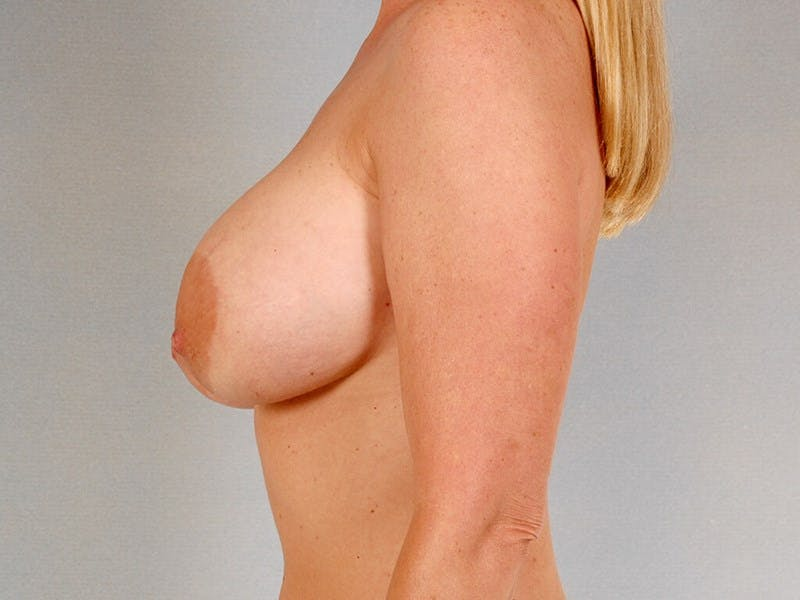 Breast Lift Gallery - Patient 20912938 - Image 5
