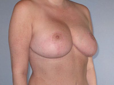Breast Reduction Gallery - Patient 20912940 - Image 4