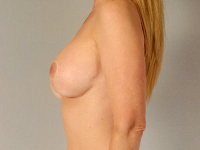 Breast Lift Gallery - Patient 20912938 - Image 6