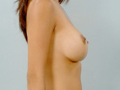 Breast Augmentation Gallery - Patient 20912939 - Image 6