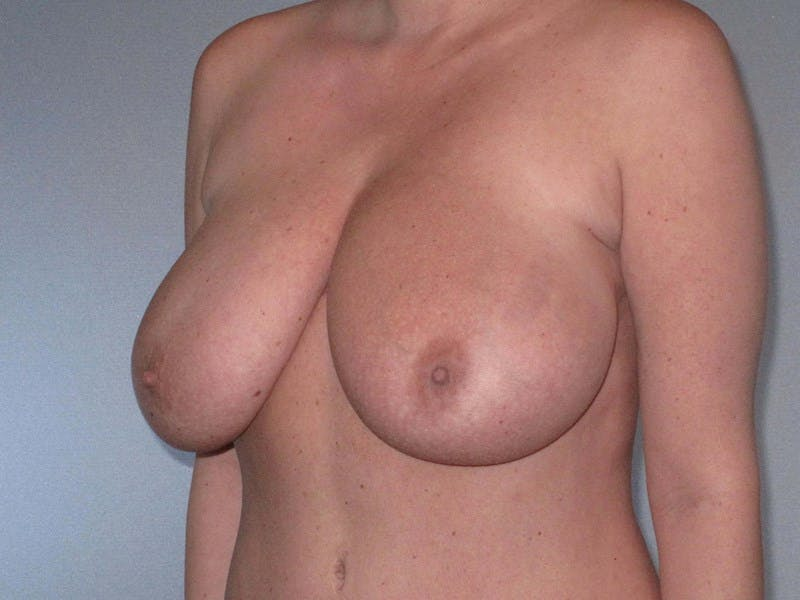 Breast Reduction Gallery - Patient 20912940 - Image 5