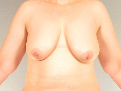 Breast Lift Gallery - Patient 20912942 - Image 1